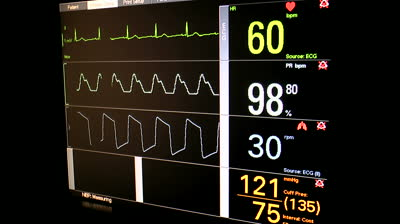 heart-rate-sp-or-oxygen-saturation-respiration