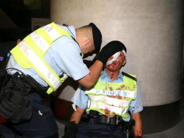 6. A police officer tends to his injured colleague. Photo RTHK