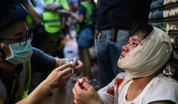An injured man is attended to as he sits on the street after a clash during a protest in Tsuen Wan. Photo AFP.jpg